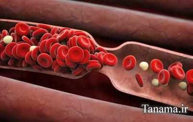 عوارض لخته شدن خون